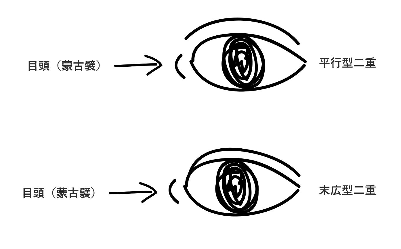平行型二重と末広型二重